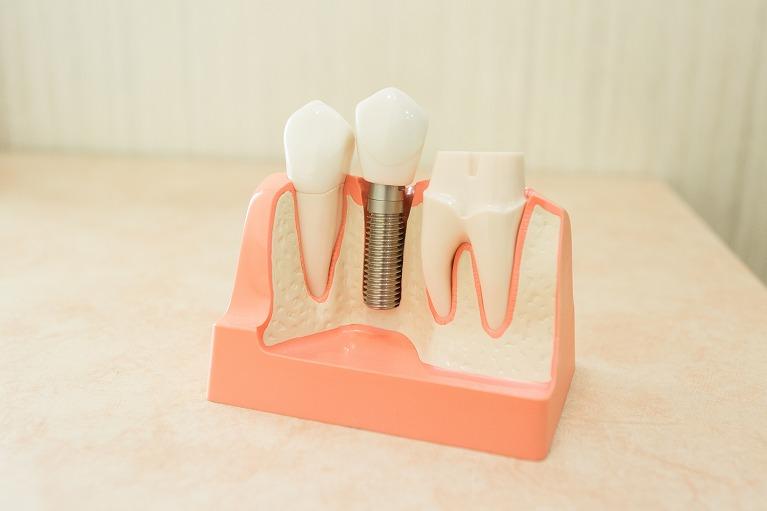 インプラント|梅田のインプラントなら愛歯やまだ歯科